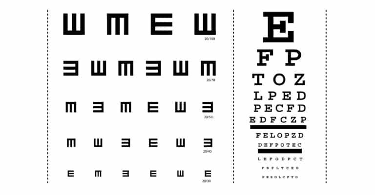 vermoeide-ogen-ogen-xtra