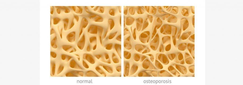 osteoporose-botplus